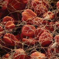 Test kit identifies genetic risk of thrombosis